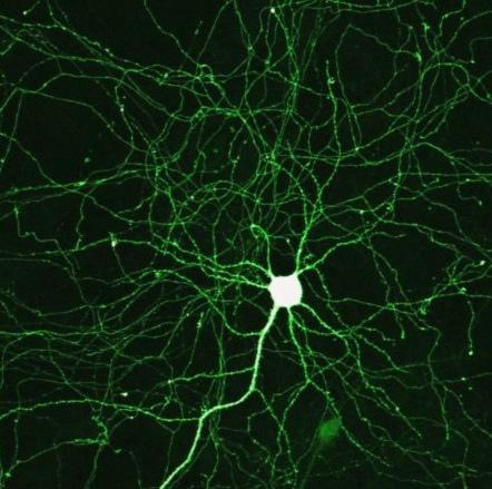 Interesting Tidbits Relating to Mental Health & the Brain